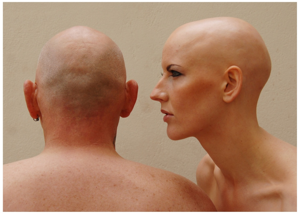 ALOPECIA PHOTOGRAPHIC SHOOT (Turning Heads) (1/5)