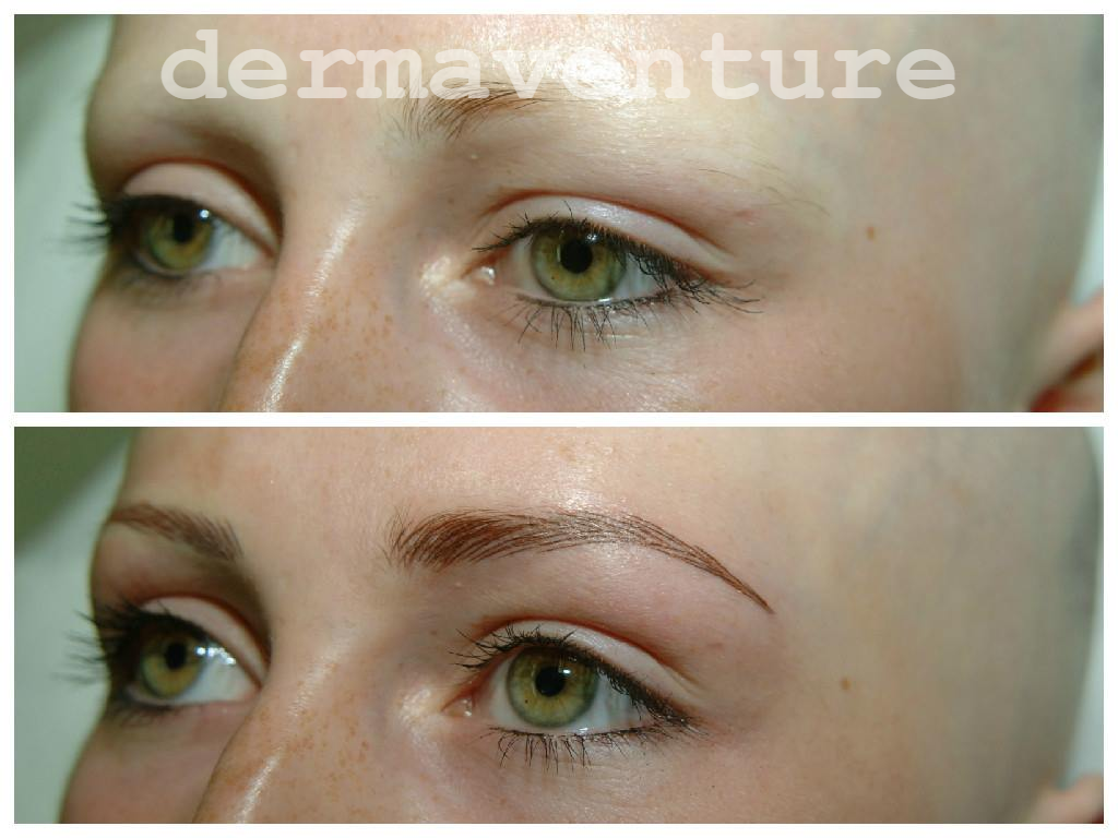 Permanent Cosmetics By Jayne Alopeciaantics