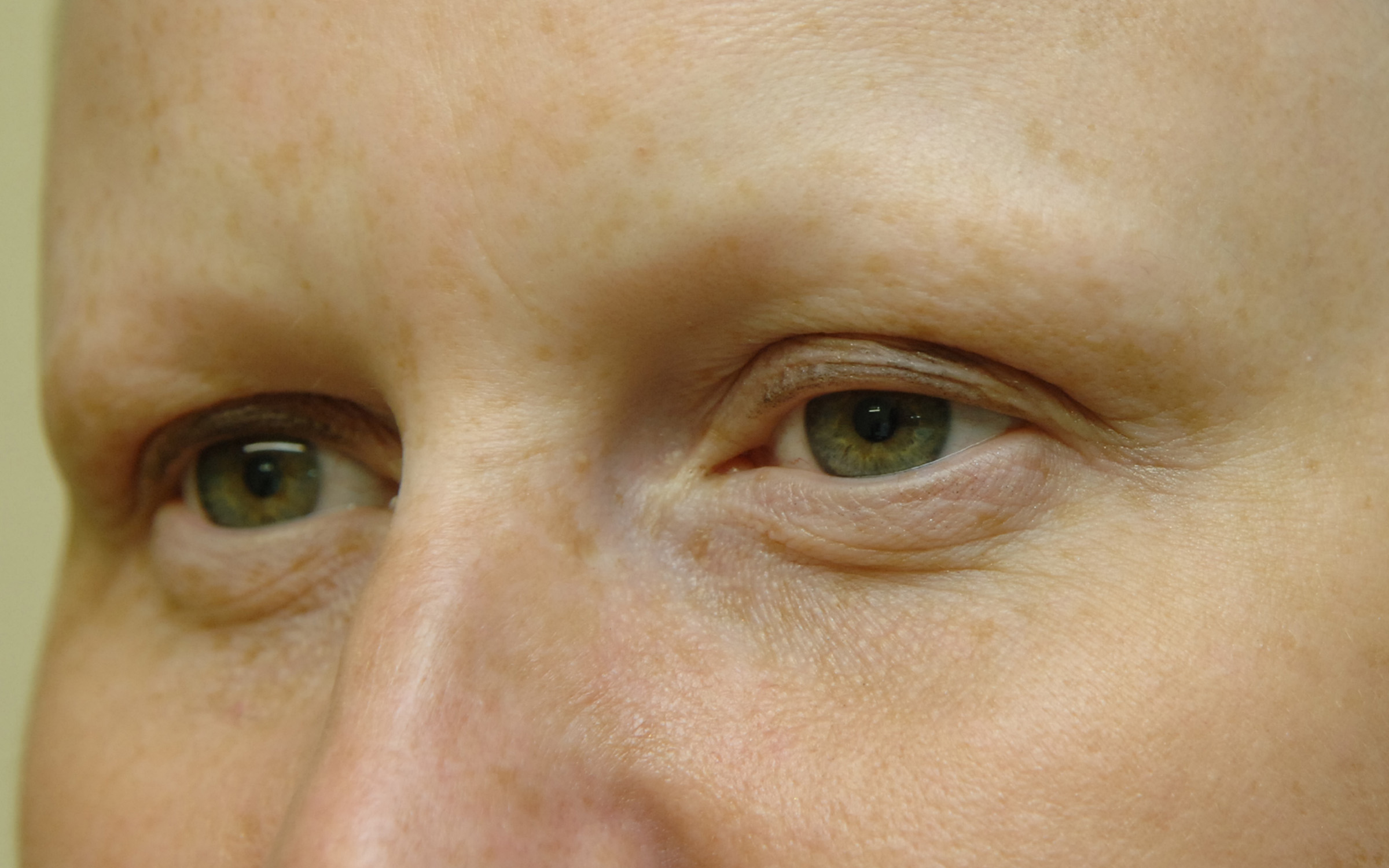 Alopecia Eyebrow Reconstruction Alopeciaantics